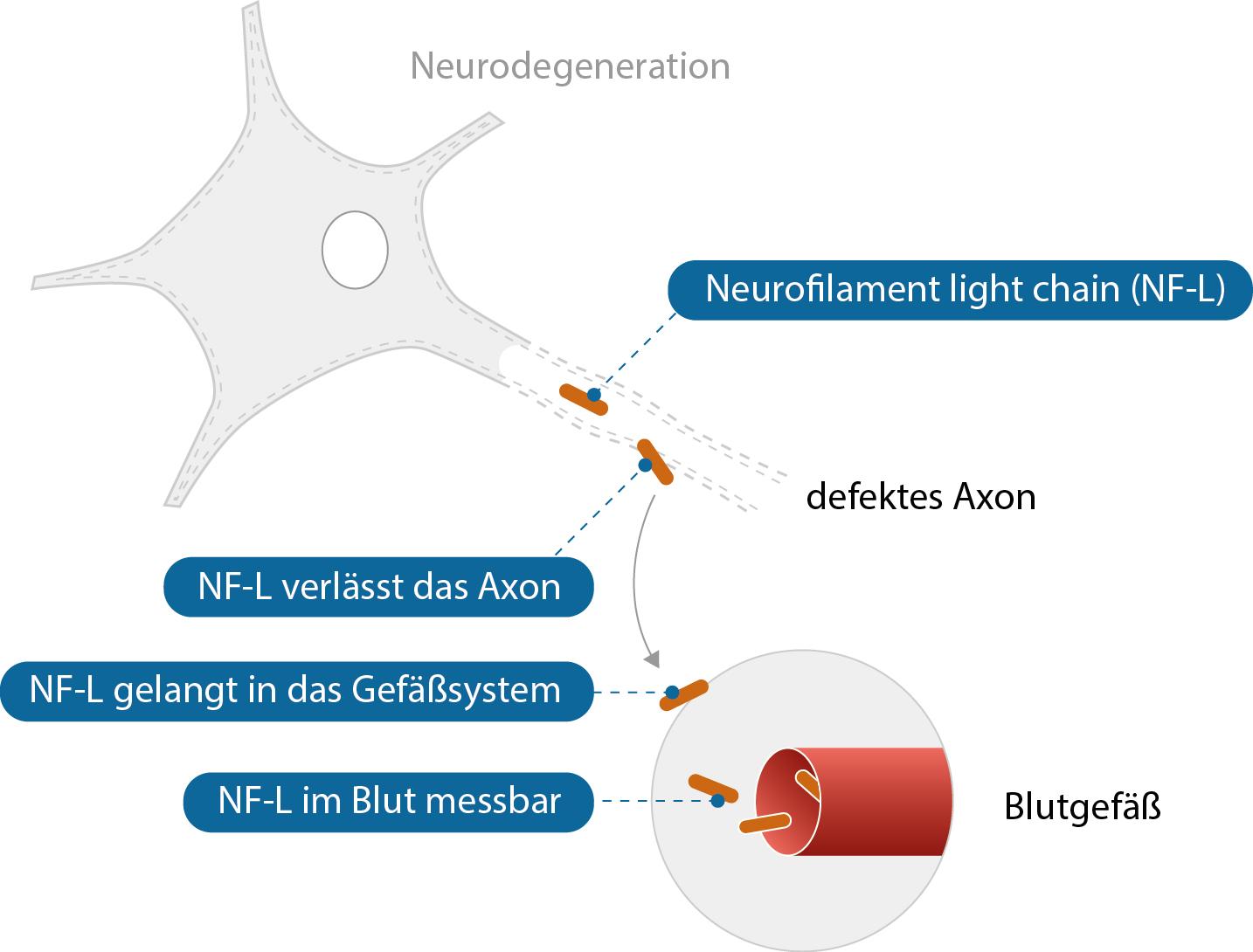 Eine Schädigung der Nervenzelle führt zu Freisetzung von NF-L in das Blut