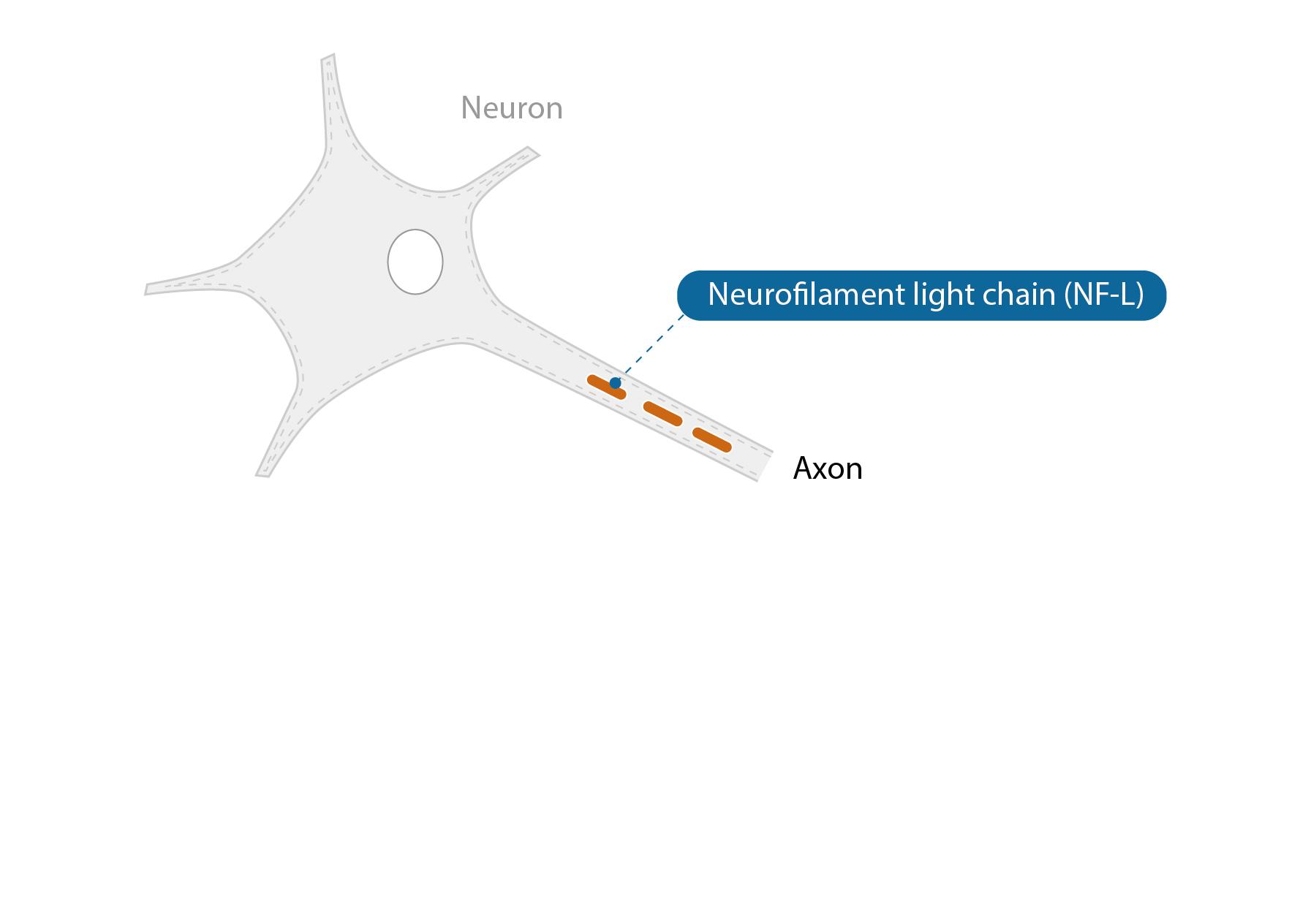 NF-L ist ein Nervenzell-spezifisches Protein.
